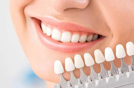 Veneers Sunwest Dental Surrey BC